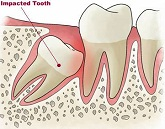 Koji su najcesce impaktirani zubi
