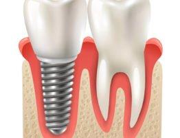 zubni implanti