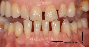 klinasta erozija zuba