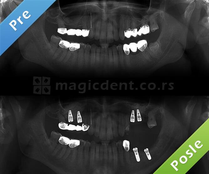 Zubni implanti pre i posle, rendgenski snimak.