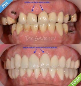 Laserski tretman desni sa očiglednim rezultatima!