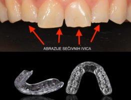 Magic Dent - škrgutanje, stiskanje zuba: bruksizam