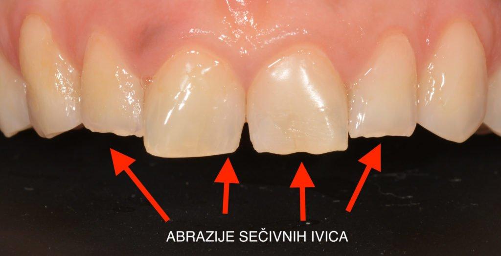 Oštećenja sečivnih ivica zuba nastaju kao posledica bruksizma.
