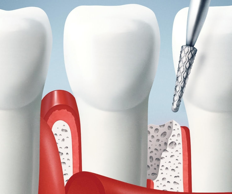Magic Dent - mehaničko uklanjanje obolelog tkiva konzervativnim tretmanom