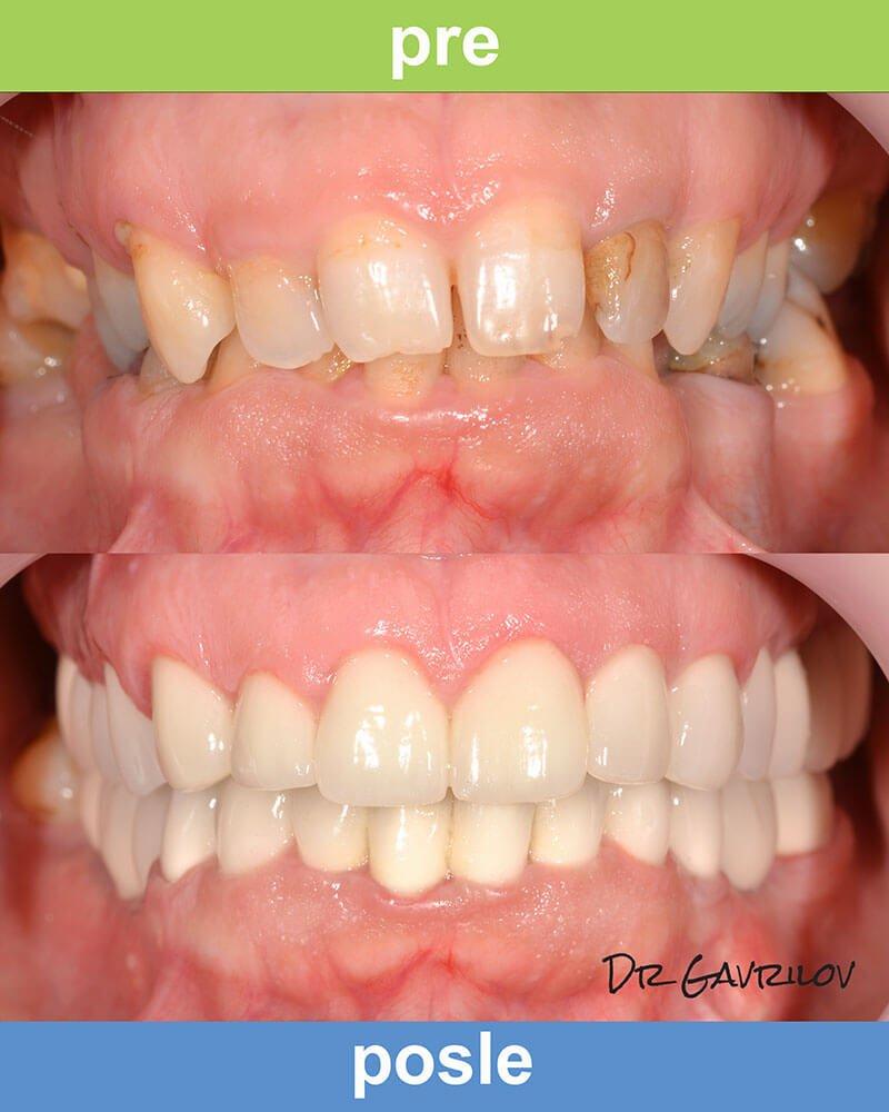 Magic Dent - Zadovoljni pacijenti posle ugradnje zubnih implanta naša su najveća satisfakcija!
