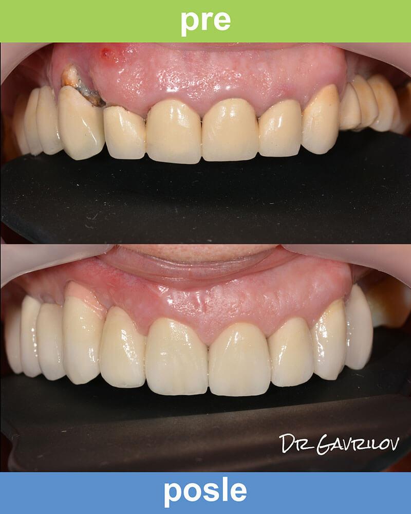 Magic Dent - Lepi osmesi naših pacijenata najbolja su reklama za ugradnju zubnih implanta kod nas!