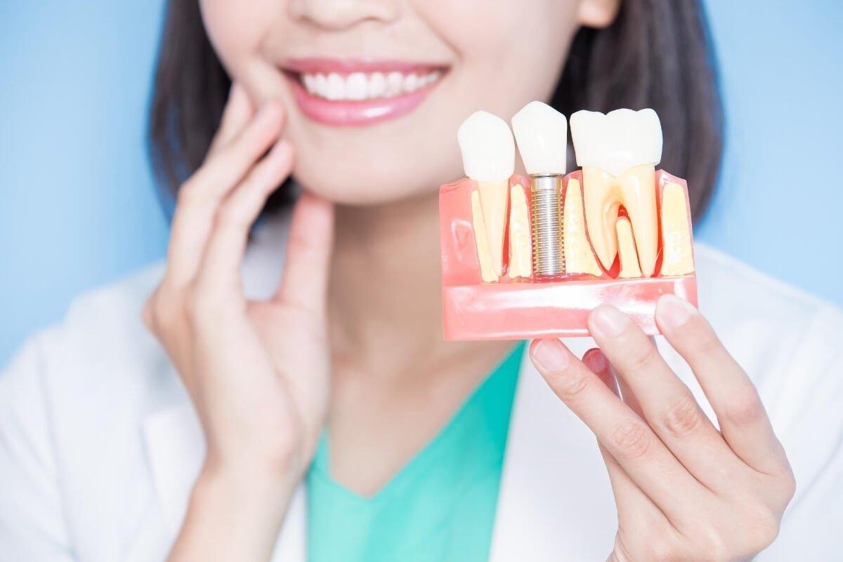 Magic Dent - Zubni implanti su idealno rešenje za problem nedostatka zuba u vilici!