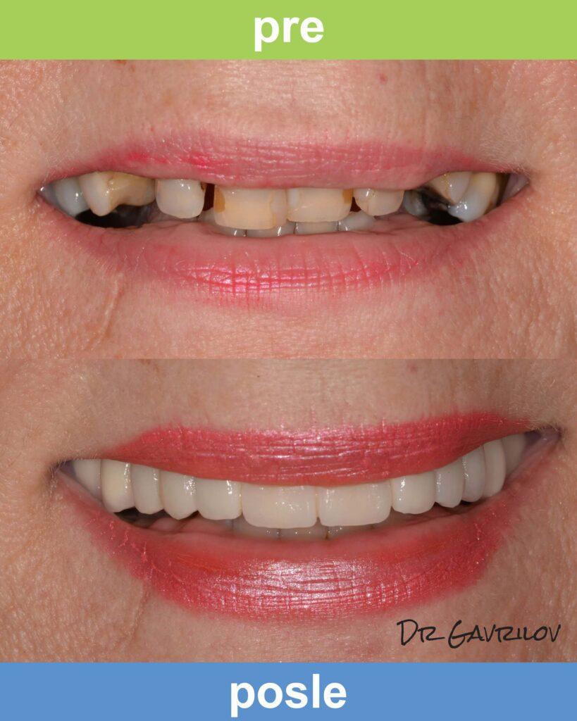 Magic Dent - Krunice za zube: slike radova su najbolji pokazatelj odličnih rezultata