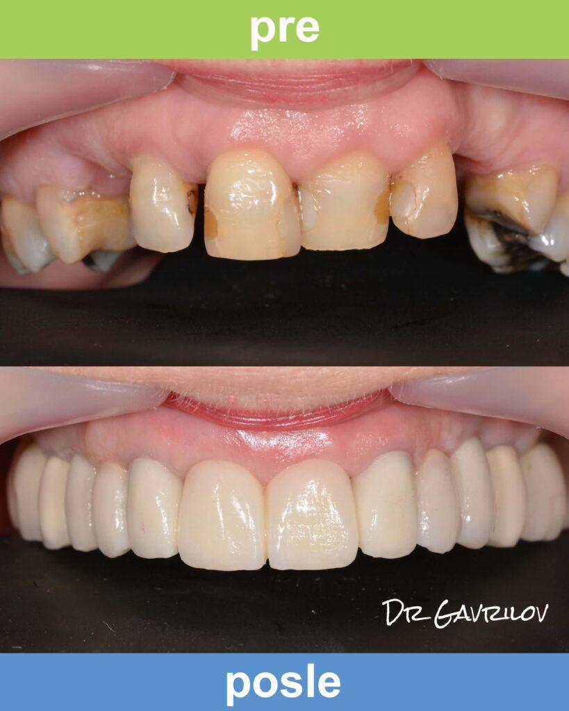 Magic Dent - Navlake za zube: slike radova su najbolji pokazatelj odličnih rezultata