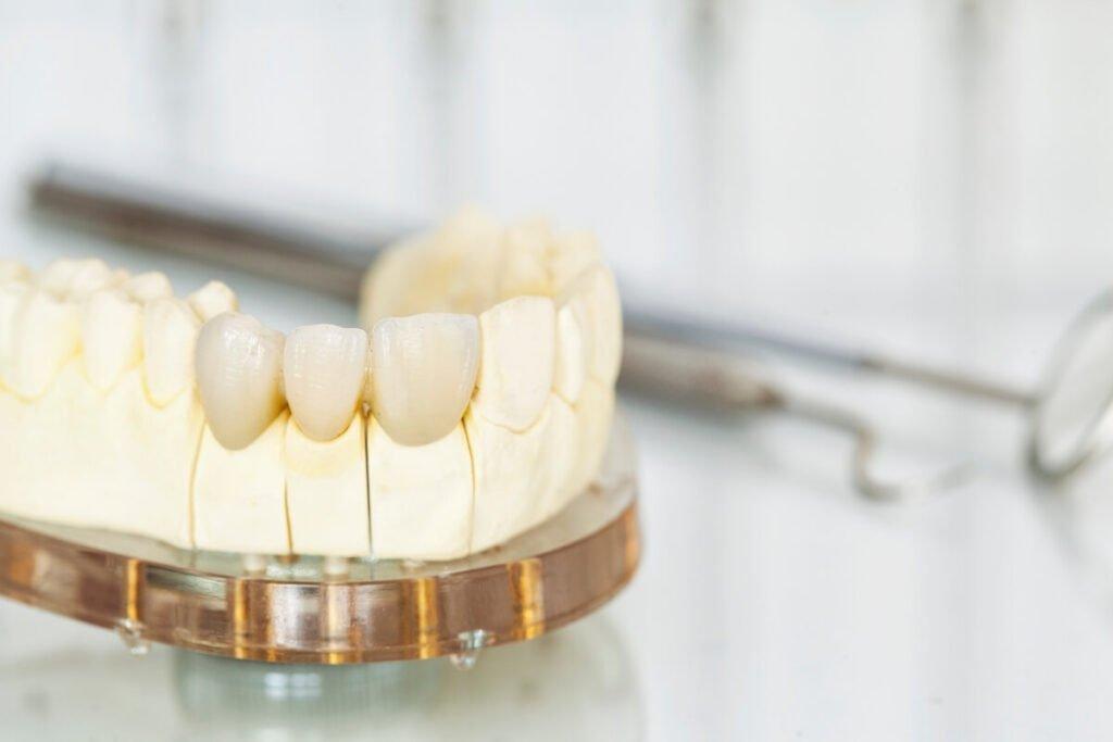 Magic Dent - krunice za zube izrađujemo od najkvalitetnijih materijala