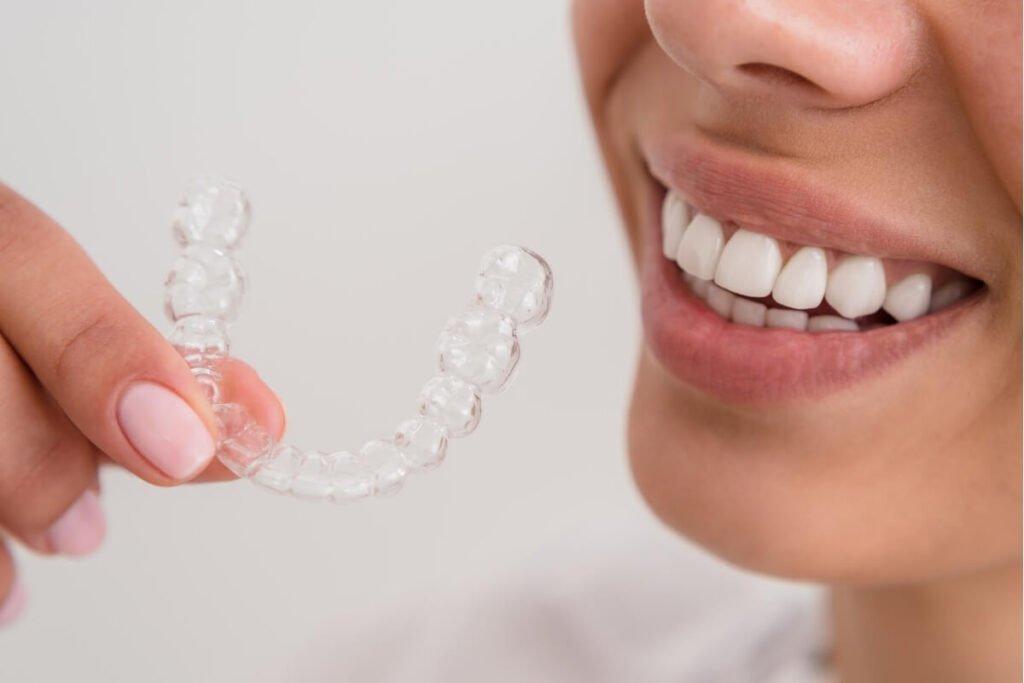 Magic Dent - Izbeljivanje zuba folijama najpopularnija je metoda izbeljivanja u kućnim uslovima