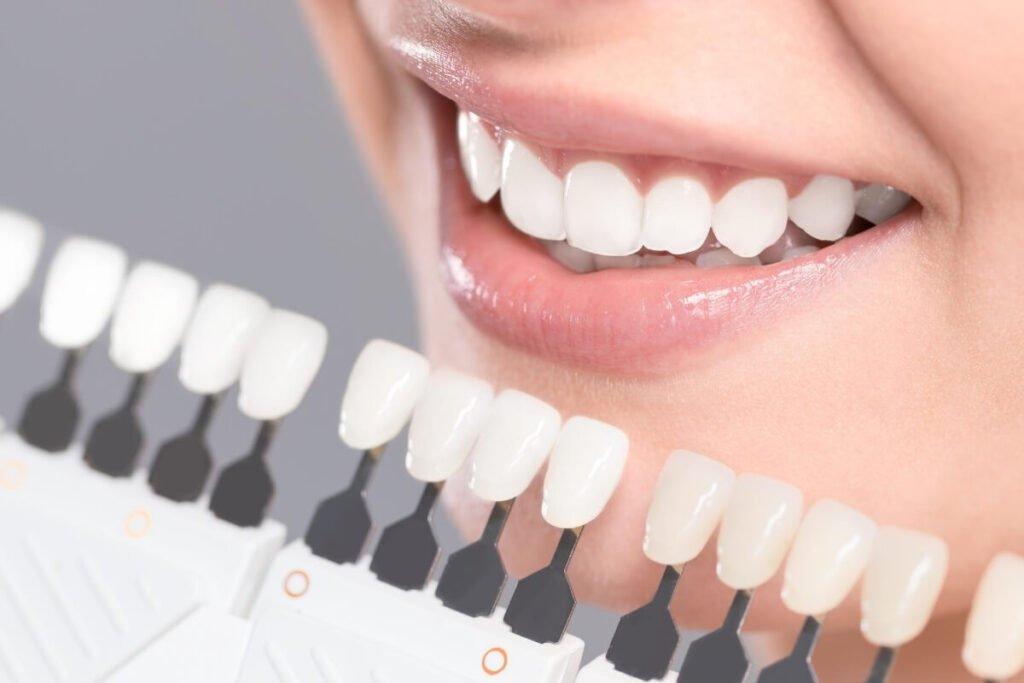 Magic Dent - Izbeljivanje zuba: nekim metodama boja zuba se može posvetleti i do 9 nijansi!