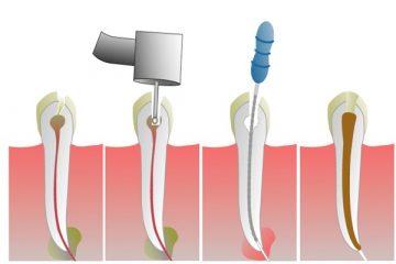 Endodoncija: ručni i mašinski instrumenti