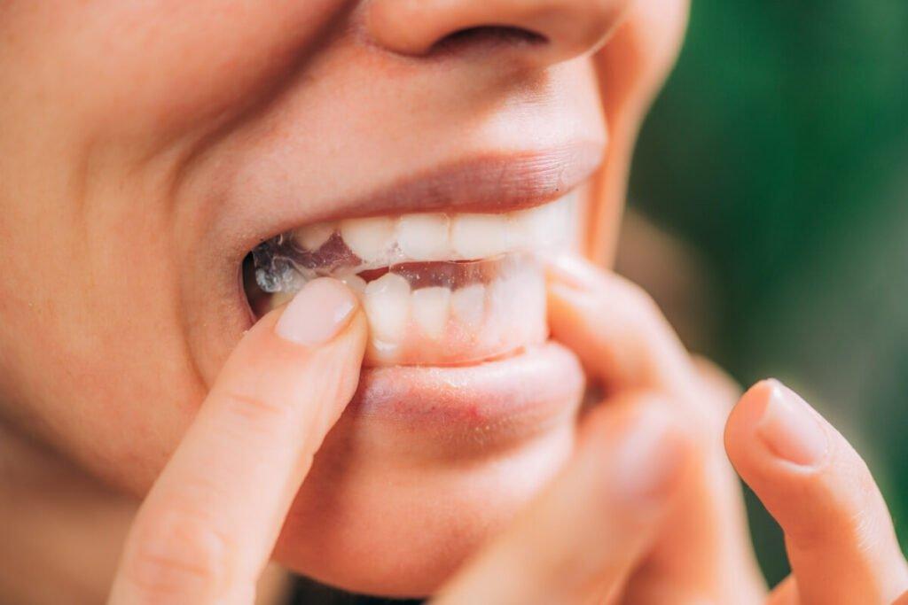 Da li trakice za izbeljivanje zuba mogu postići željene rezultate?