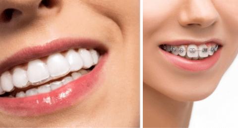 Ispravljanje zuba folijama vs ispravljanje fiksnom protezom