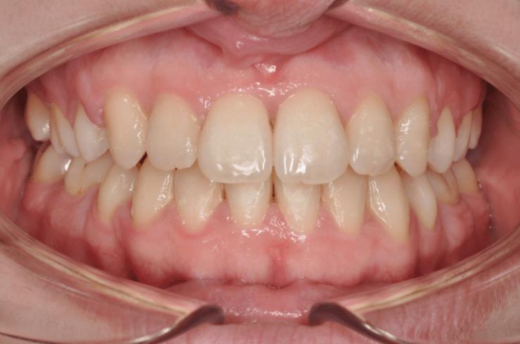 Zubi nakon terapije fiksnom protezom