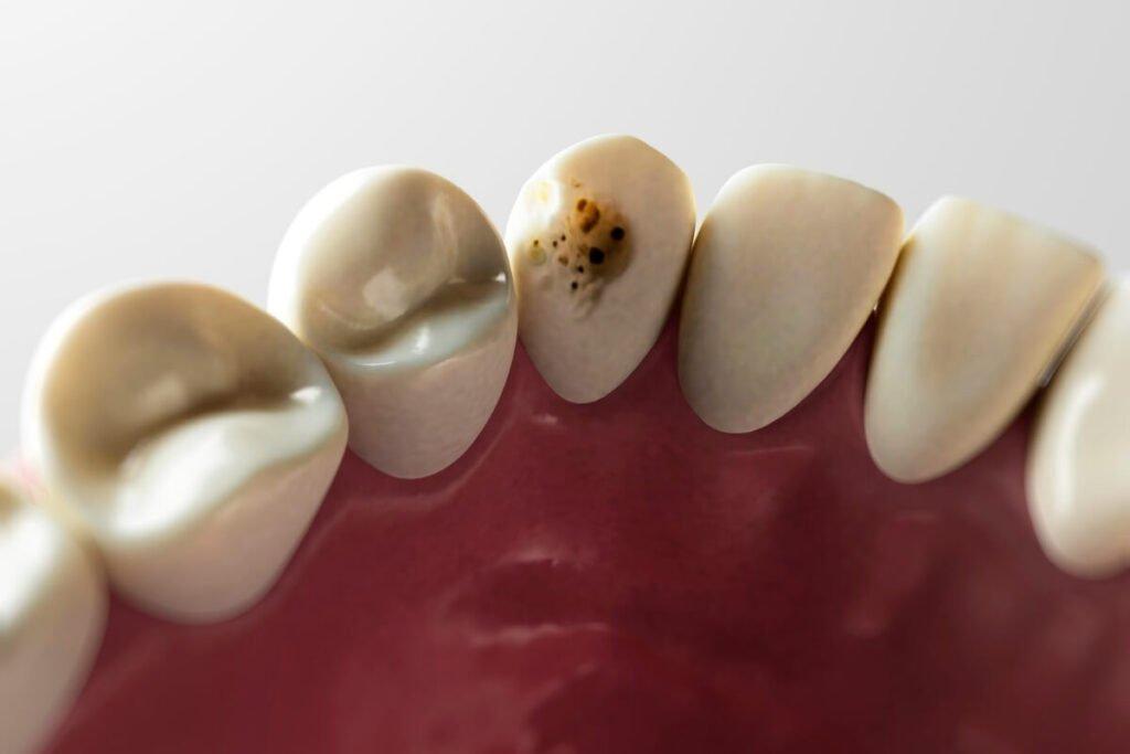 Pigmentacija zuba se ispoljava u vidu tamnosmeđih ili crnih mrlja.